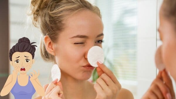 5 best Acne Treatment For Teenage